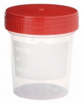 vizeletes pohár, steril